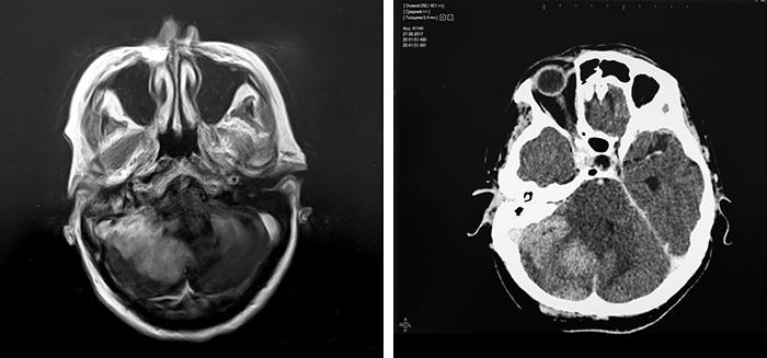 Снимок МРТ и КТ