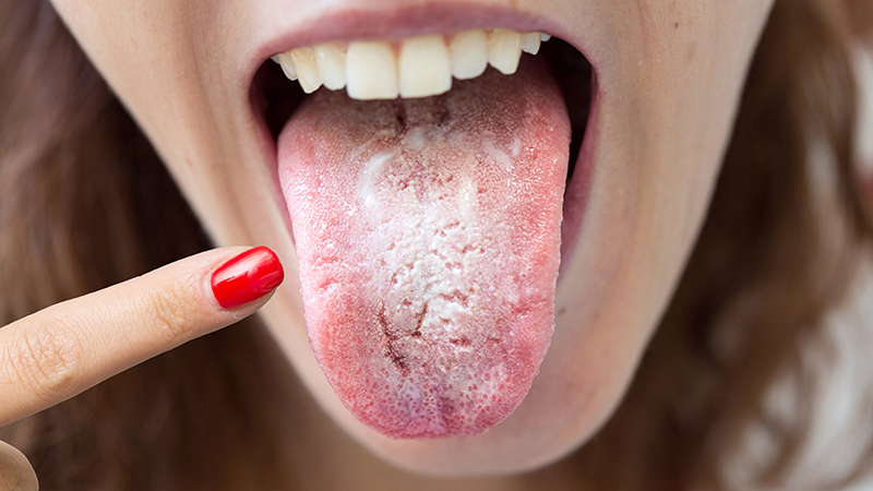 Язык с трещинами